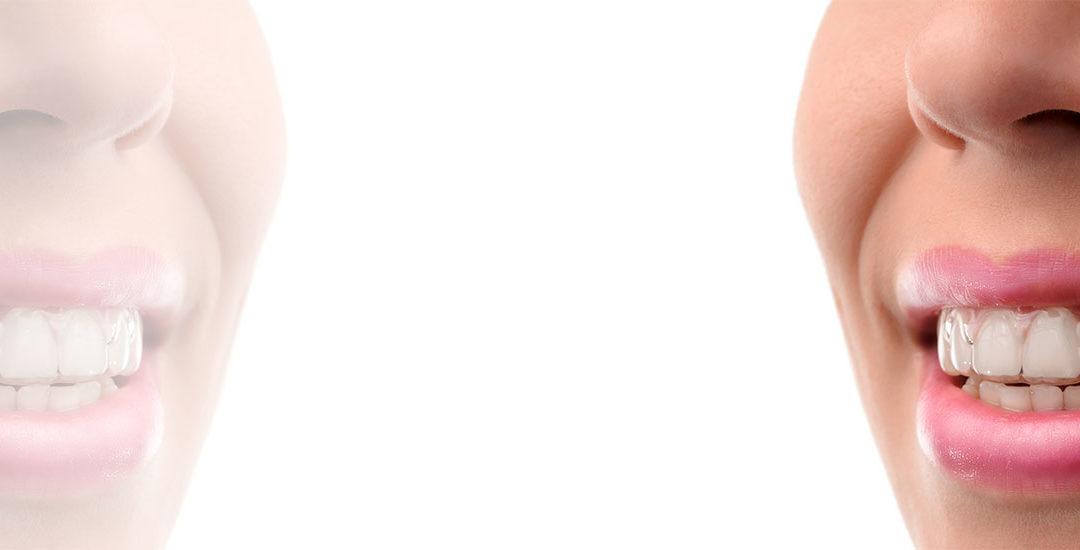 CLEAR ALIGNER – Eine moderne Methode zur Korrektur von Okklusion.